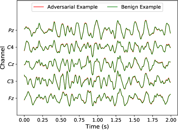 Figure 3 for Universal Adversarial Perturbations for CNN Classifiers in EEG-Based BCIs