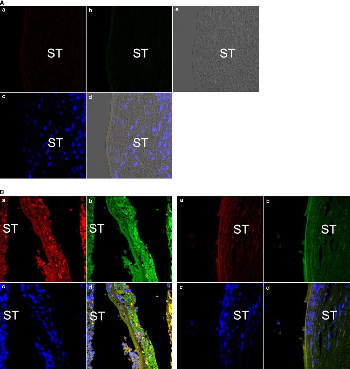 Figure 1 from Split of Descemet\'s membrane and pre-Descemet\'s layer ...