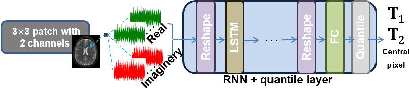 Figure 1 for RinQ Fingerprinting: Recurrence-informed Quantile Networks for Magnetic Resonance Fingerprinting