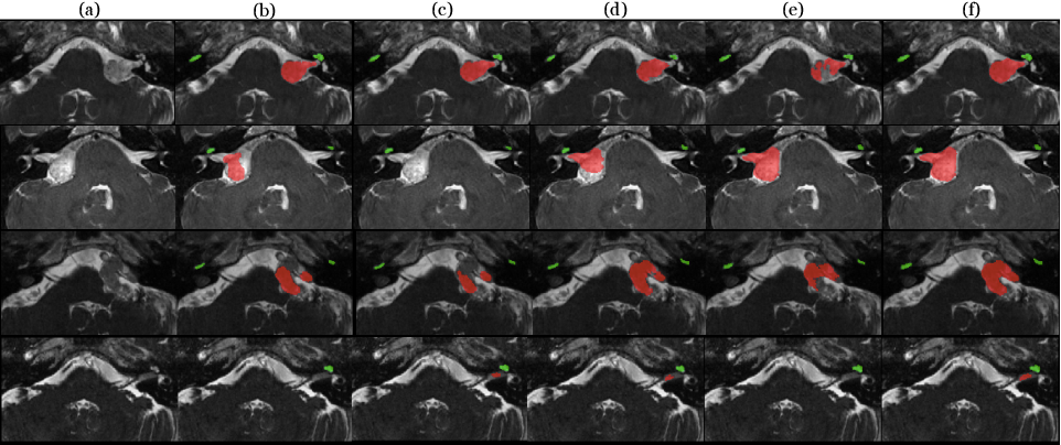 Figure 2 for Unsupervised Cross-Modality Domain Adaptation for Segmenting Vestibular Schwannoma and Cochlea with Data Augmentation and Model Ensemble