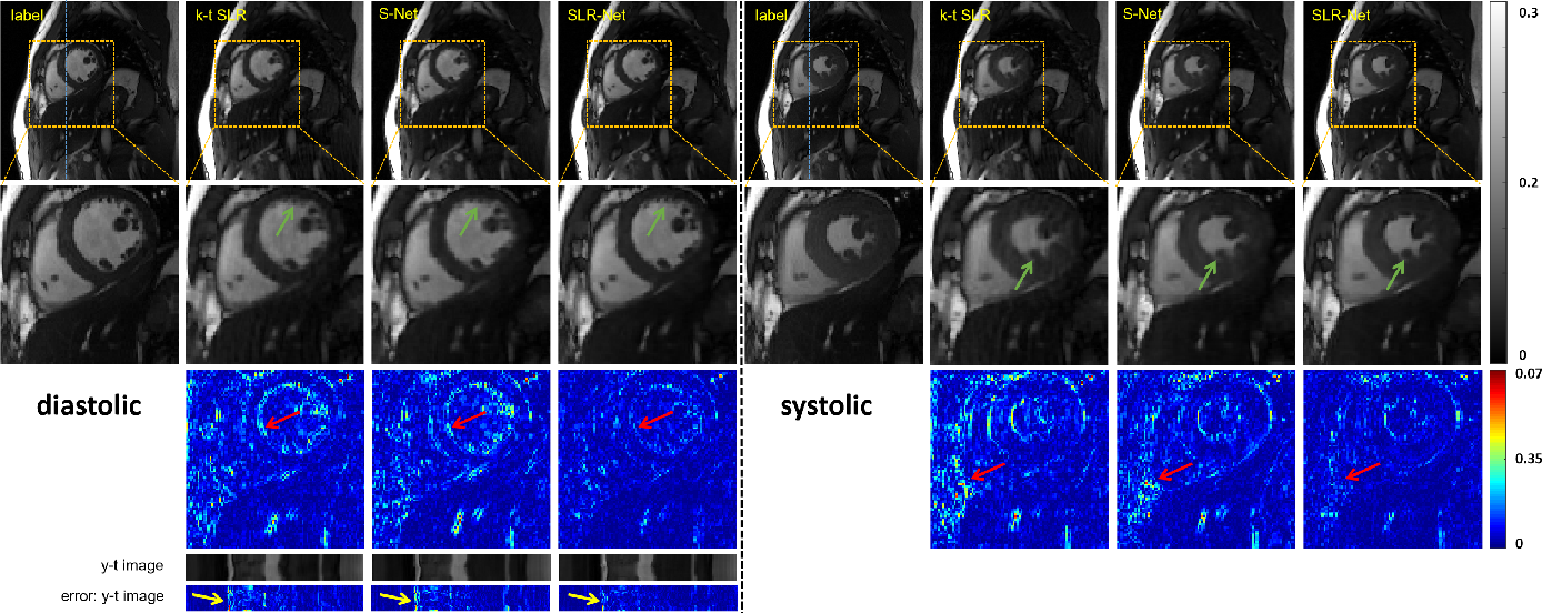 Figure 4 for Deep Low-rank Prior in Dynamic MR Imaging
