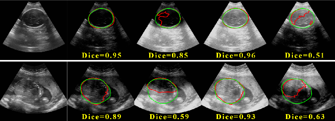 Figure 1 for Remove Appearance Shift for Ultrasound Image Segmentation via Fast and Universal Style Transfer