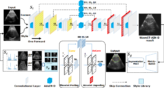 Figure 3 for Remove Appearance Shift for Ultrasound Image Segmentation via Fast and Universal Style Transfer