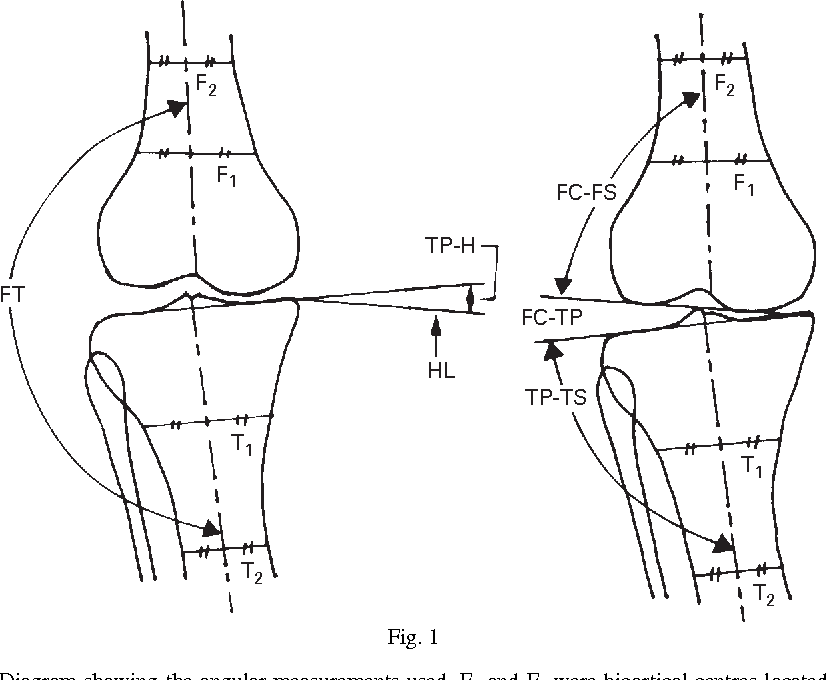 Varus Inclination Of The Distal Femur And High Tibial Osteotomy