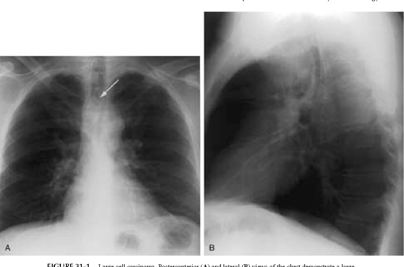 Trachea Anatomy And Pathology Semantic Scholar
