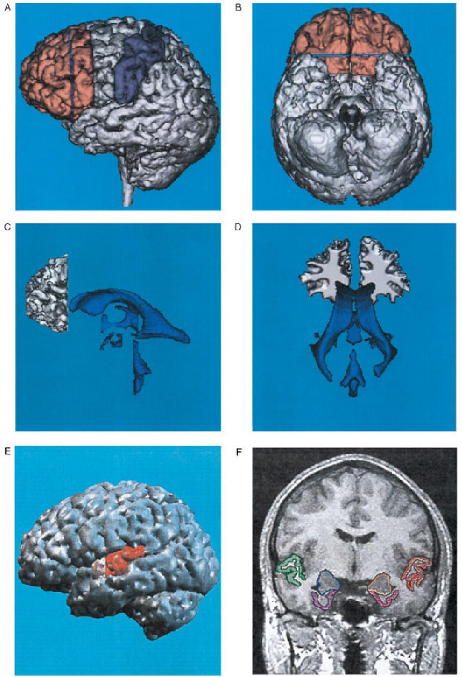 Figure 1 From Mri Anatomy Of Schizophrenia Semantic Scholar
