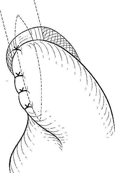 Comparison Of The Hellertoupet Procedure With The Hellerdor