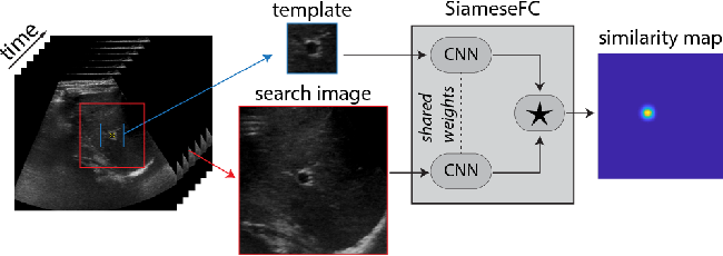 Figure 1 for Siamese Networks with Location Prior for Landmark Tracking in Liver Ultrasound Sequences