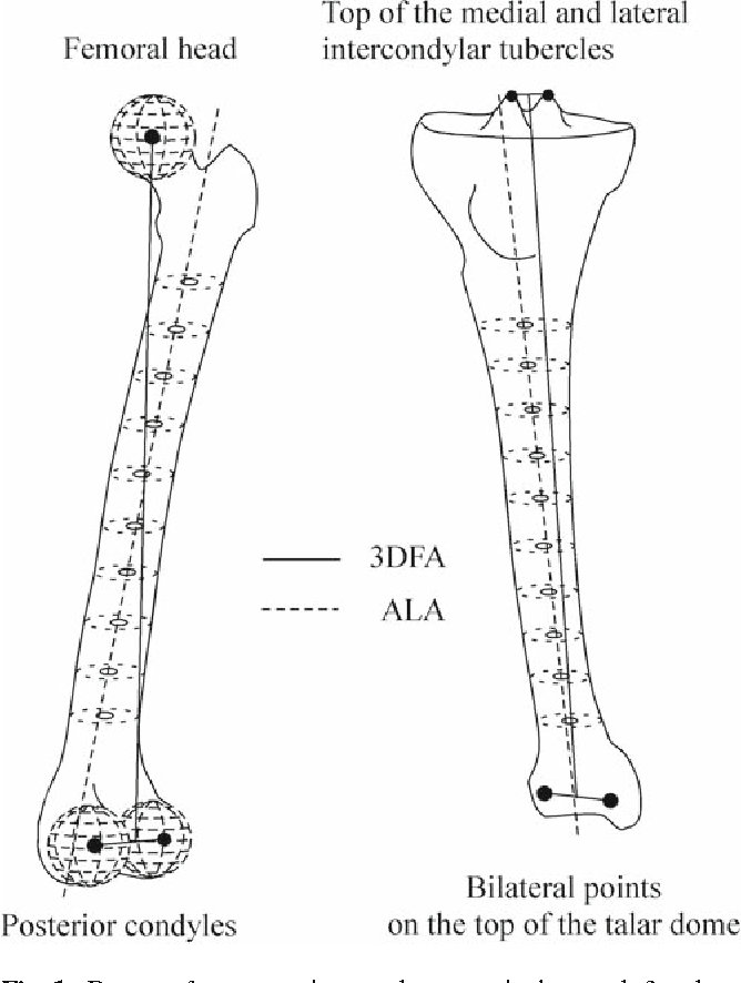 Three Dimensional Lower Extremity Alignment In The Weight Bearing