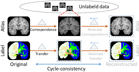 Figure 1 for LT-Net: Label Transfer by Learning Reversible Voxel-wise Correspondence for One-shot Medical Image Segmentation