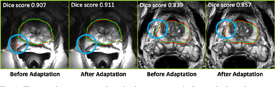 Figure 3 for Federated Whole Prostate Segmentation in MRI with Personalized Neural Architectures