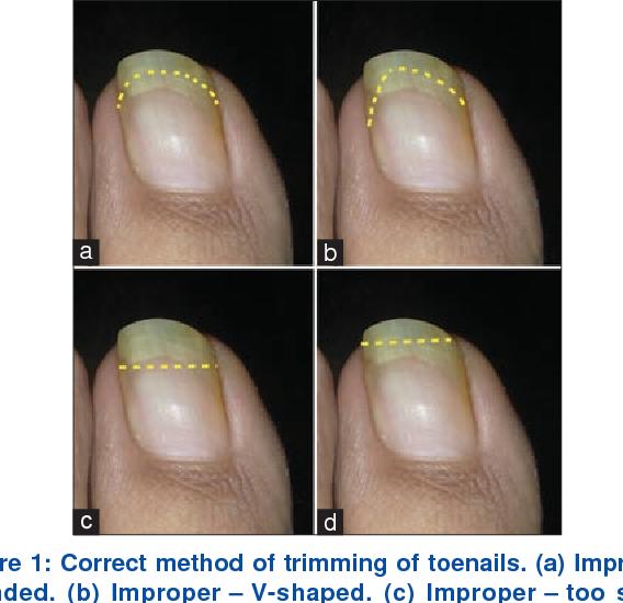 Figure 1 from Ingrown toenails. - Semantic Scholar