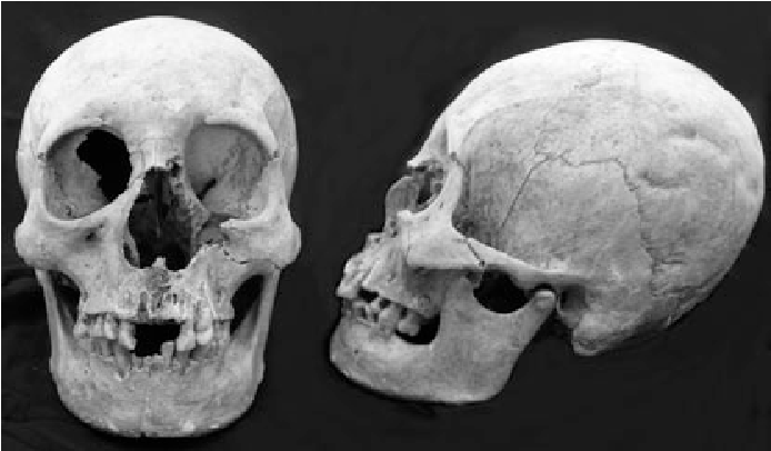 The identification of a human skull recovered from an eBay