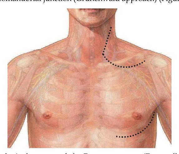 Pancoast Tumor Superior Sulcus Anatomy Postero Lateral Shaw Paulson