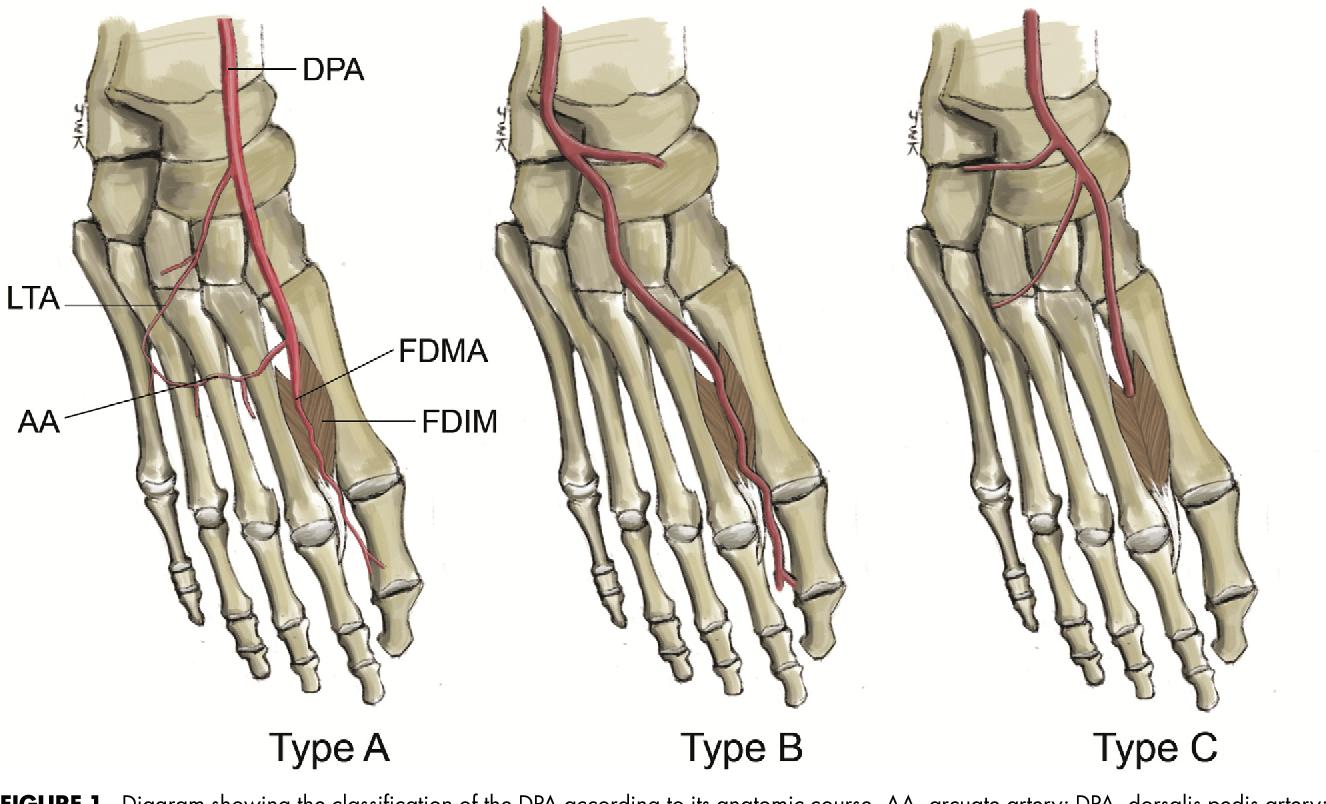 Anatomic Study of the Dorsalis Pedis Artery, First Metatarsal Artery ...
