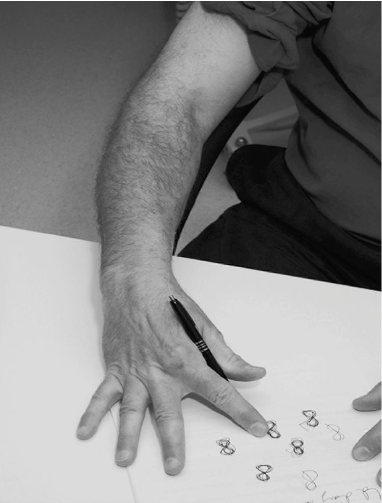 Resultado de imagem para writer's cramp dystonia