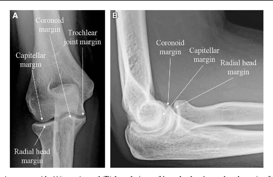 Three-dimensional analysis of elbow soft tissue footprints and ...