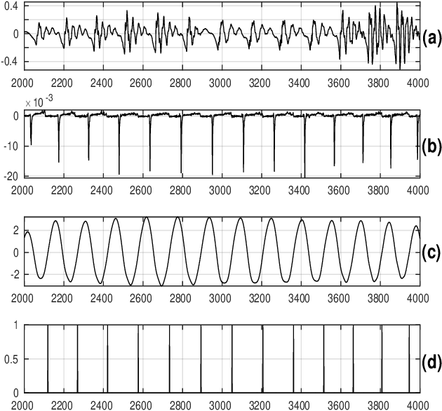 Figure 3 for Pitch-Synchronous Single Frequency Filtering Spectrogram for Speech Emotion Recognition