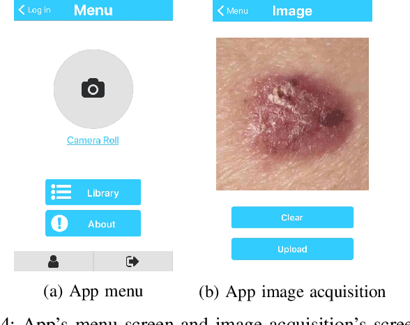 Figure 4 for A Smartphone based Application for Skin Cancer Classification Using Deep Learning with Clinical Images and Lesion Information