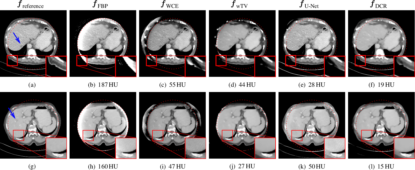 Figure 3 for Data Consistent CT Reconstruction from Insufficient Data with Learned Prior Images
