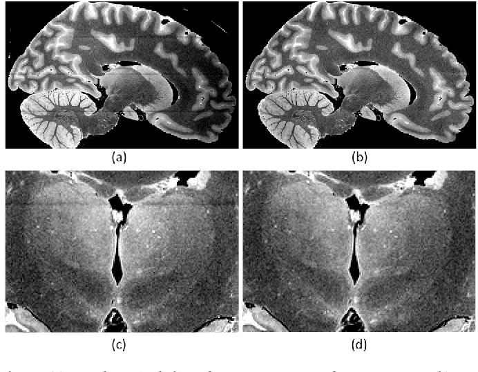 Figure 2 for A probabilistic atlas of the human thalamic nuclei combining ex vivo MRI and histology