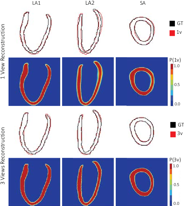 Figure 3 for 3D High-Resolution Cardiac Segmentation Reconstruction from 2D Views using Conditional Variational Autoencoders