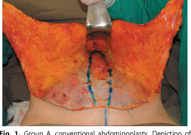 Figure 1 from Seroma in lipoabdominoplasty and abdominoplasty: a
