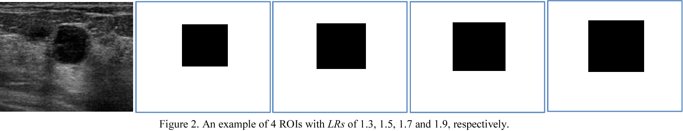 Figure 3 for A Benchmark for Breast Ultrasound Image Segmentation (BUSIS)