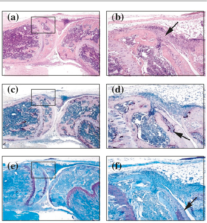 Local bone erosions in rheumatoid arthritis - Semantic Scholar