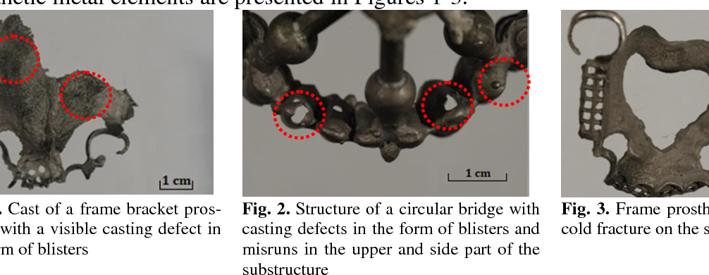 PDF] QUALITATIVE ASSESSMENT OF THE DEFECTS IN METAL CASTING