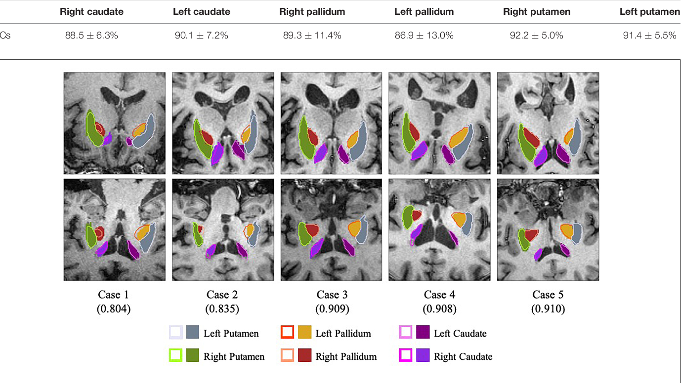 Figure 4 for A Fully-Automatic Framework for Parkinson's Disease Diagnosis by Multi-Modality Images
