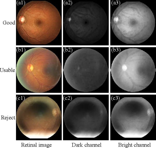 Figure 3 for A Dark and Bright Channel Prior Guided Deep Network for Retinal Image Quality Assessment