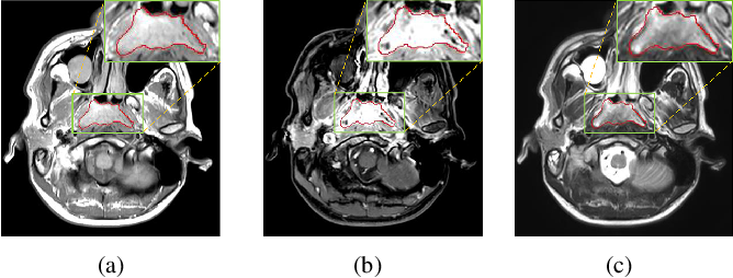 Figure 1 for MMFNet: A Multi-modality MRI Fusion Network for Segmentation of Nasopharyngeal Carcinoma