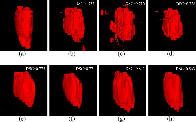 Figure 2 for MMFNet: A Multi-modality MRI Fusion Network for Segmentation of Nasopharyngeal Carcinoma