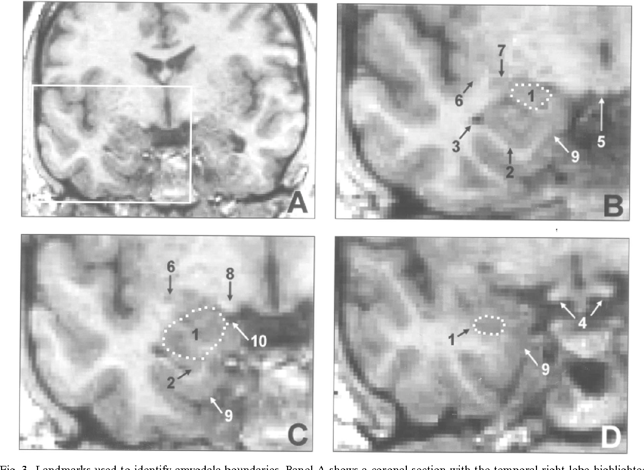 MRI volume of the amygdala: a reliable method allowing separation ...