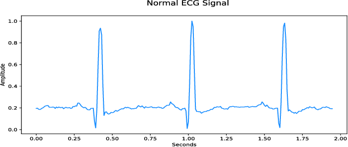 Figure 1 for Synthesis of Realistic ECG using Generative Adversarial Networks