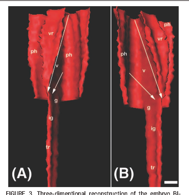 Figure 3 from Morphogenesis of the human laryngeal ventricles ...