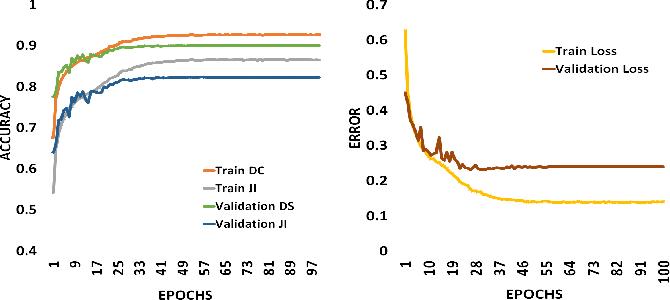 Figure 3 for SkinNet: A Deep Learning Framework for Skin Lesion Segmentation