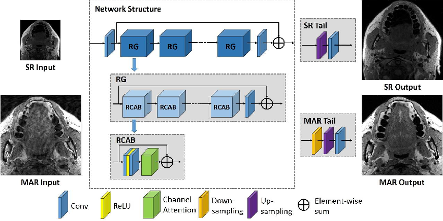 Figure 1 for Edge, Structure and Texture Refinement for Retrospective High Quality MRI Restoration using Deep Learning