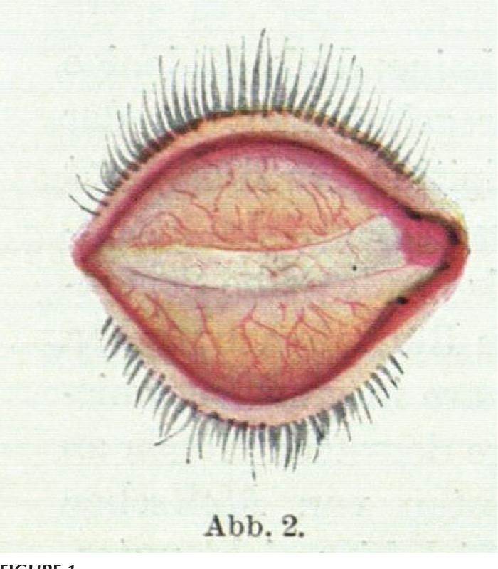 Figure 1 from About vital staining of the eye and eyelids. I. The ...