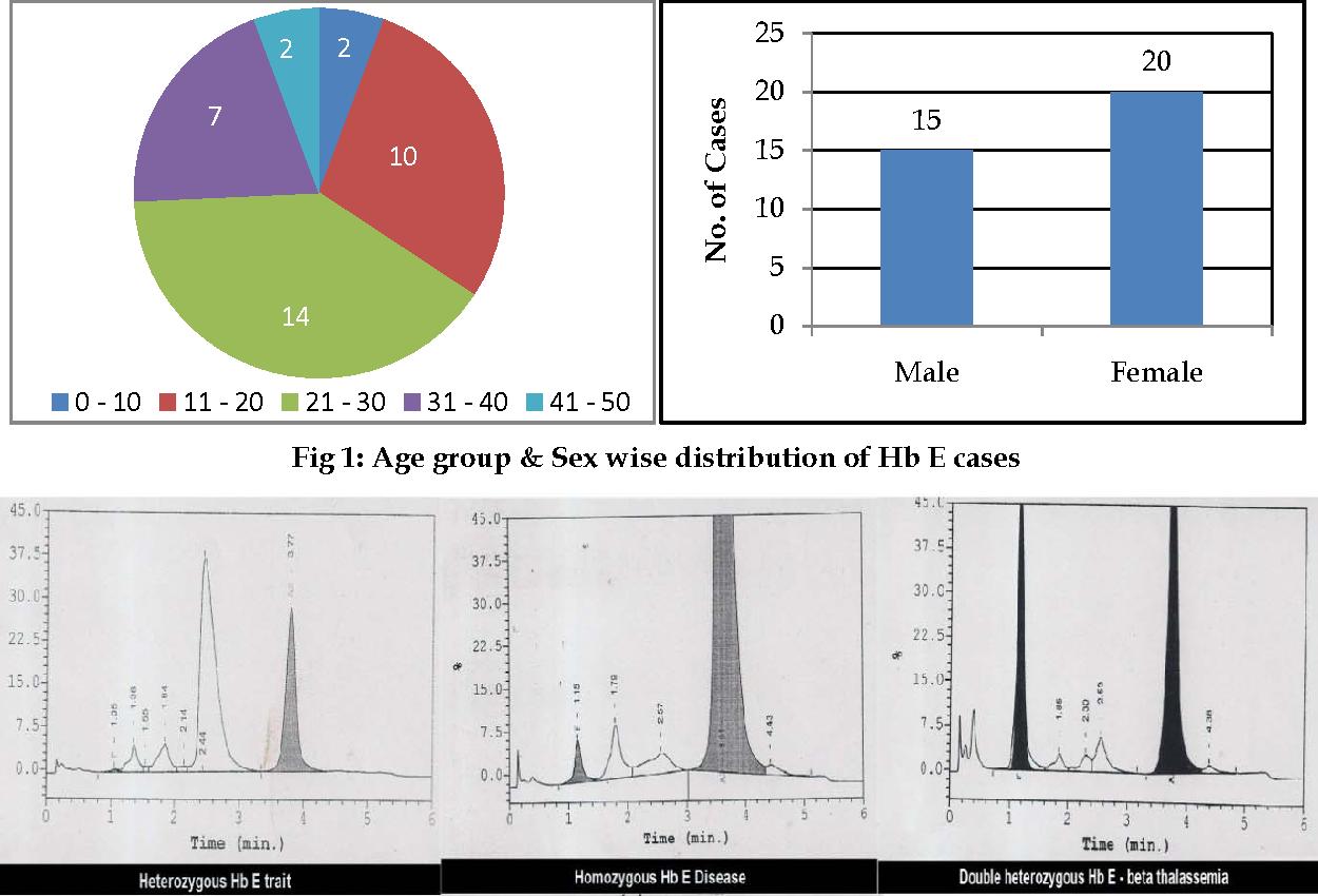 PDF] HEMOGLOBIN E DISORDERS IN SOUTH GUJARAT - A STUDY OF 35