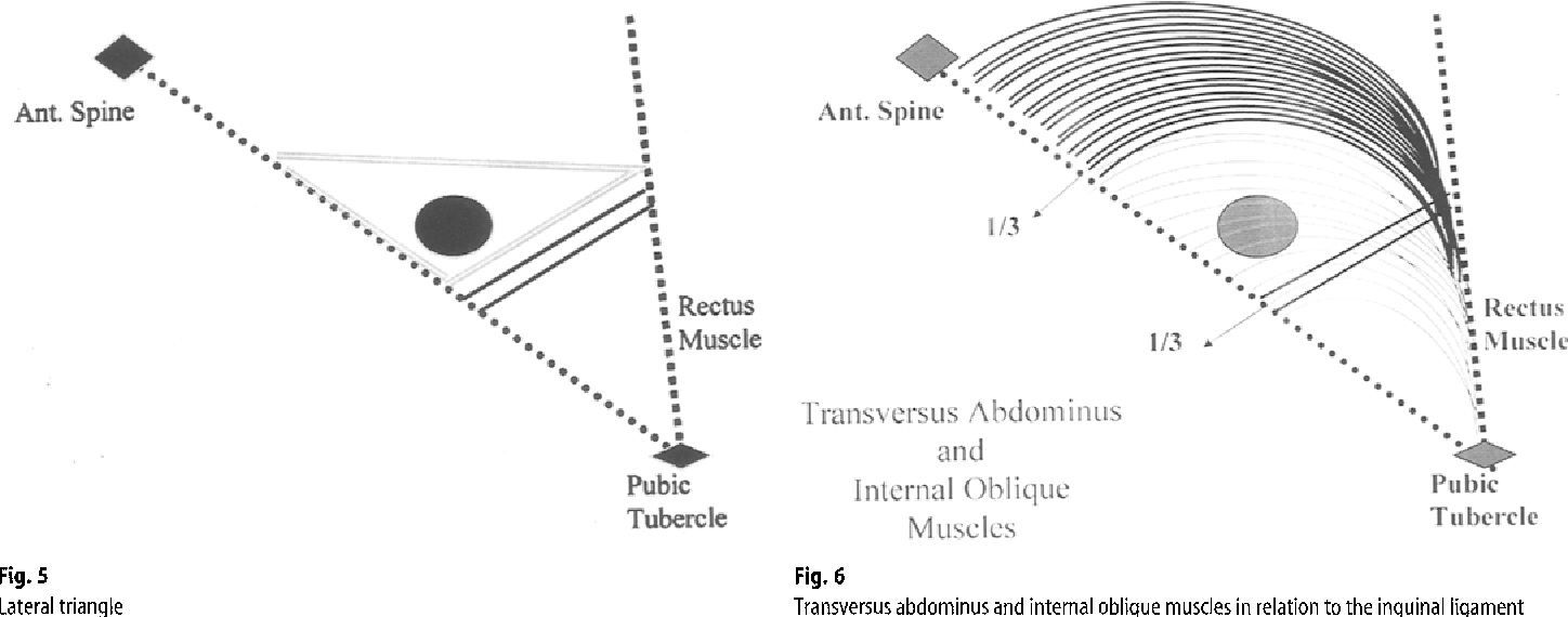 Structure of deep inguinal ring - Semantic Scholar