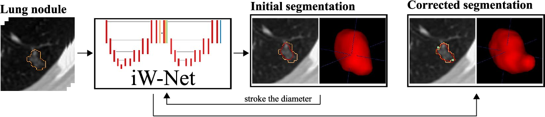 Figure 1 for iW-Net: an automatic and minimalistic interactive lung nodule segmentation deep network