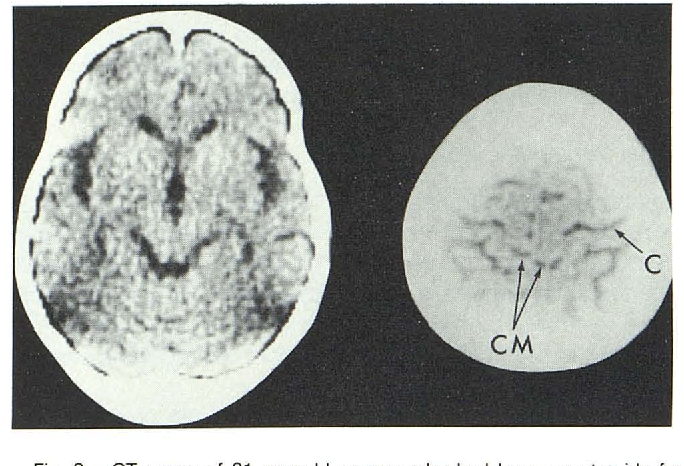 Figure 3 From Radiologic Changes Of The Aging Brain And Skull