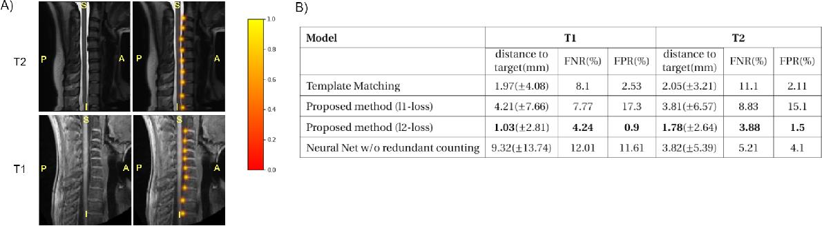 Figure 2 for Spine intervertebral disc labeling using a fully convolutional redundant counting model
