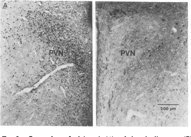 FIG. 2. Comparison of calcineurin (A) and phosphodiesterase (B) immunoreactivities in the paraventricular nucleus (PVN) of the hypothalamus. Sections shown represent one-half paraventricular nucleus and are arranged to give mirror images.