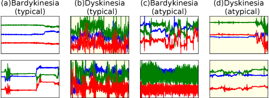 Figure 1 for Data Augmentation of Wearable Sensor Data for Parkinson's Disease Monitoring using Convolutional Neural Networks