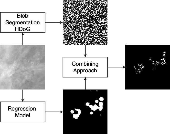 Figure 1 for Segmentation of Breast Microcalcifications: A Multi-Scale Approach