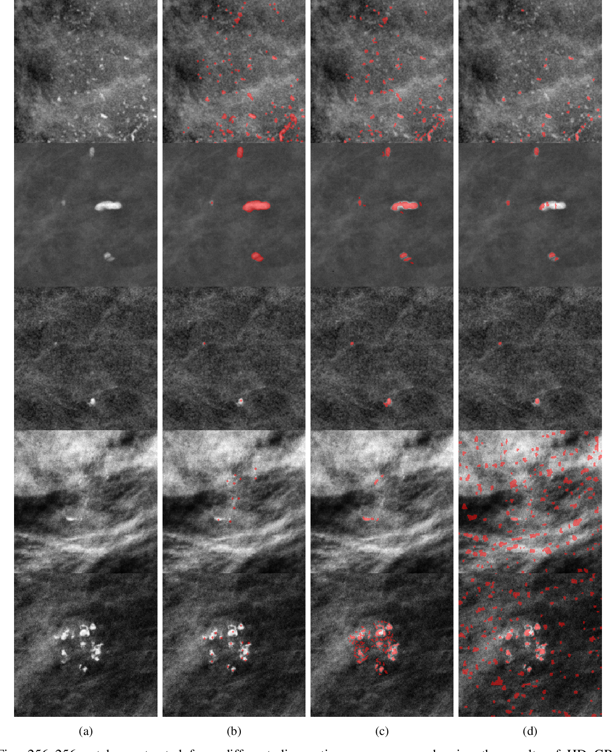 Figure 4 for Segmentation of Breast Microcalcifications: A Multi-Scale Approach