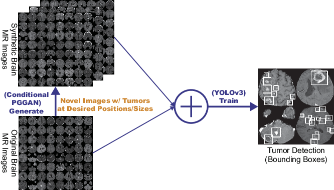 Figure 1 for Learning More with Less: Conditional PGGAN-based Data Augmentation for Brain Metastases Detection Using Highly-Rough Annotation on MR Images